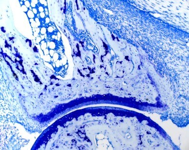 Toluidine blue special stain - mouse ankle with type II collagen-induced arthritis, 100x